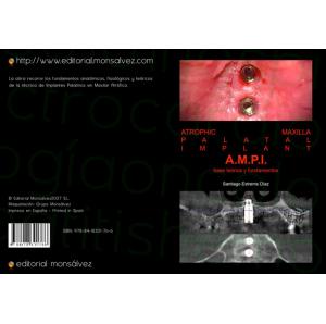 Atrophic Maxilla Palatal Implant A.M.P.I. base teórica y fundamentos